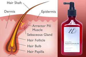 Severe Hair Loss & Natural Treatment DZBB Super Kalusugan