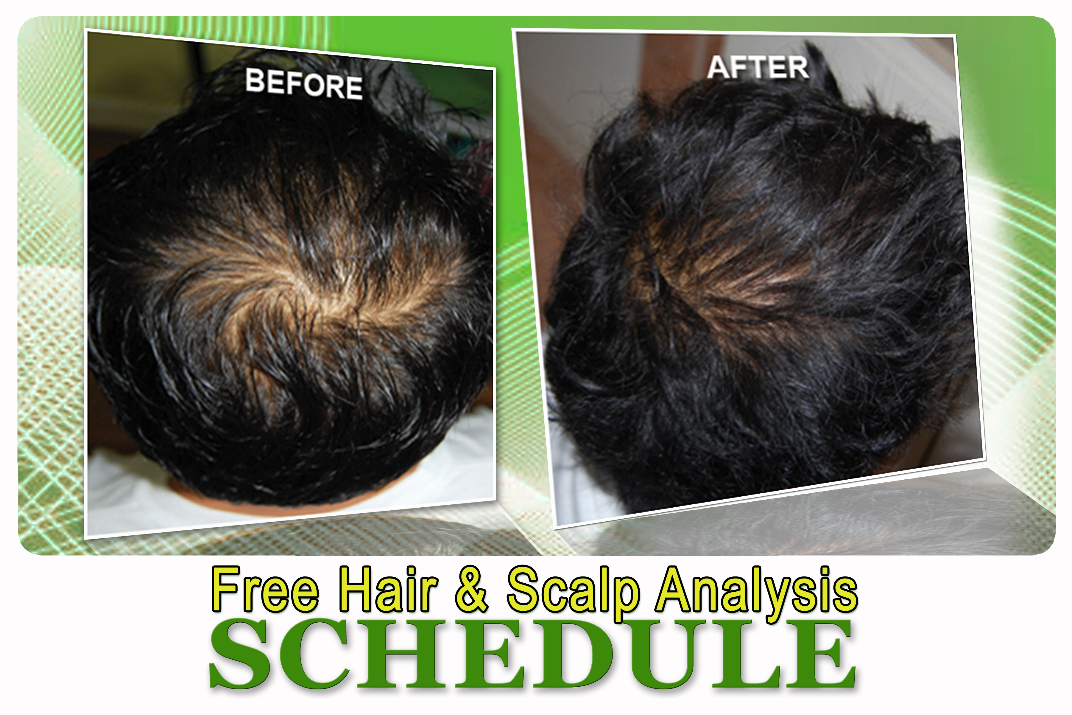 Novuhair Free Hair & Scalp Analysis