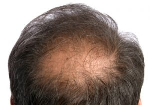 Hair Loss The Second Encounter Three Common Types Novuhair