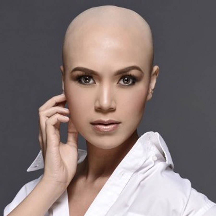 Models With Alopecia Pictures to Pin on Pinterest - PinsDaddy