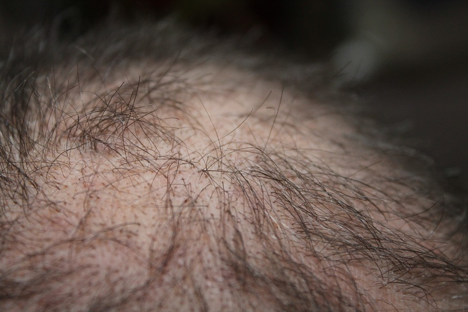 Article - Inheriting Hair Loss
