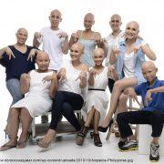 Alopecia-Philippines