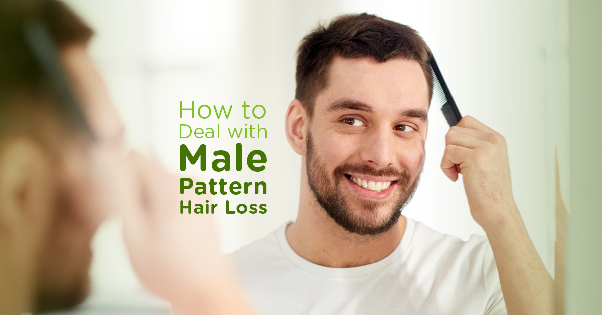 How to Deal with Male Pattern Baldness