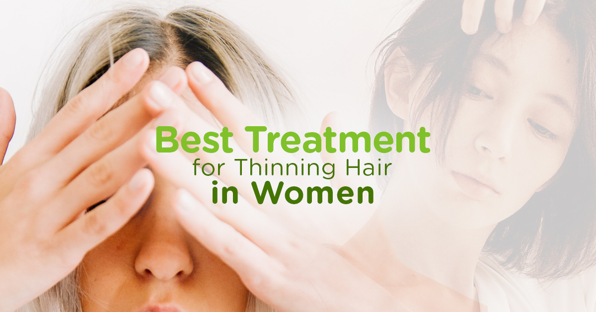 Best Treatment for Thinning Hair in Women